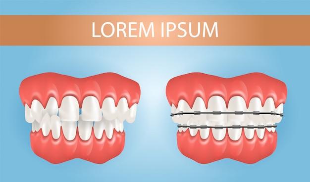 Diastema und zahnspange mit kreuzbisszähnen