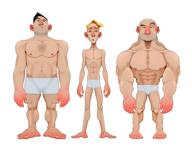 Drei arten von männlichen anatomischen karies