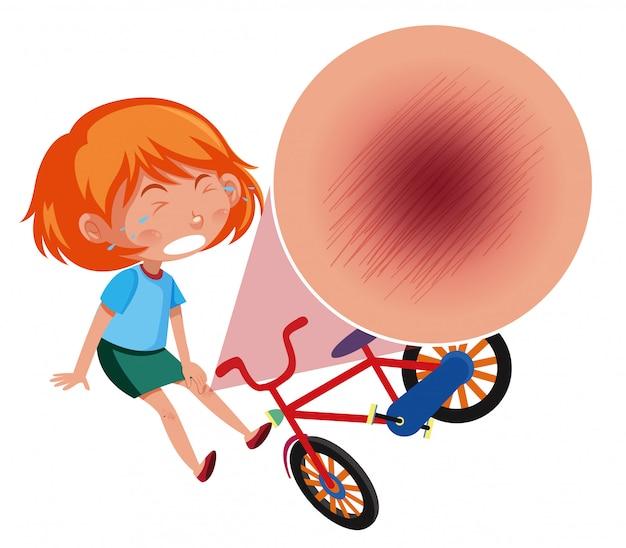 Ein mädchen fällt vom fahrrad