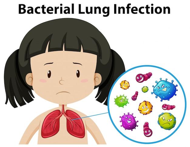 Ein vektor der bakteriellen lungeninfektion