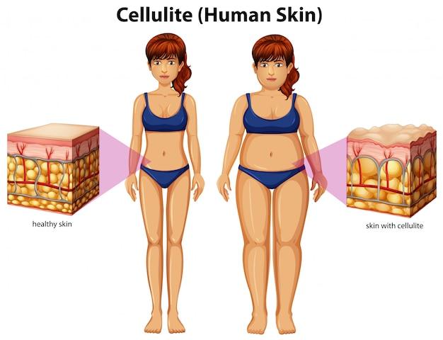 Ein vergleich von frauen mit cellulite