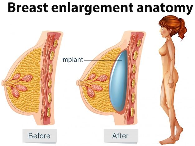 Eine menschliche anatomie des brustimplantats