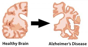 Eine menschliche Anatomie des Gehirns