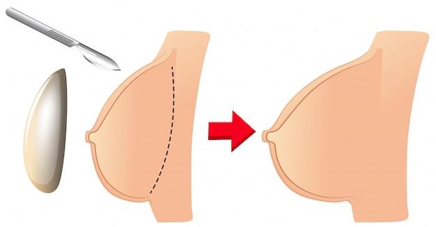 Eine reihe von brustvergrößerung