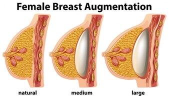 Eine Reihe von weiblichen Brustvergrößerung