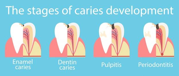Entwicklung von zahnkaries-banner