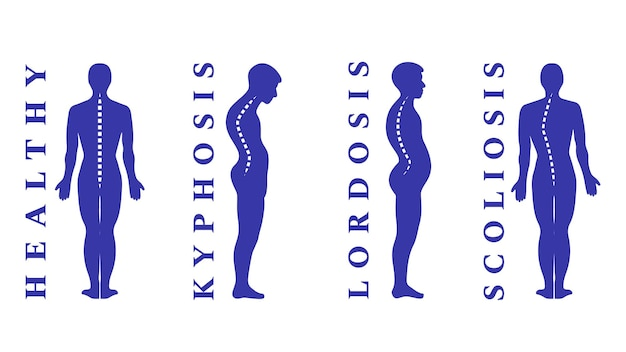 Erkrankungen der wirbelsäule. skoliose, lordose, kyphose. körperhaltungsfehler. krümmung nach hinten. arten von wirbelsäulendeformitäten. infografik zu medizinischen krankheiten. diagnostisches symptom. vektor-illustration.