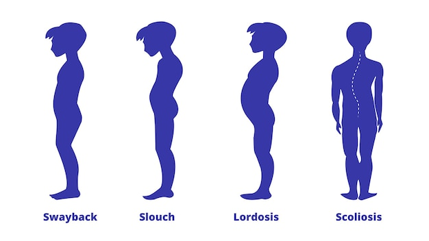 Erkrankungen der wirbelsäule. skoliose, lordose, swayback, slouch. körperhaltungsfehler. arten von wirbelsäulendeformitäten. infografik zu medizinischen krankheiten. diagnostisches symptom. jungen-silhouette. vektor-illustration.