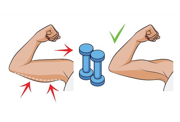 Färben sie vektorillustration eines problems des übergewichts bei frauen. seitenansicht der weiblichen hände. körperfett am weiblichen trizeps. vor und nach hantelübungen