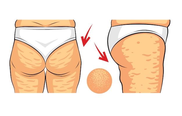 Farbvektorillustration des celluliteproblems. rückansicht und seitenansicht der weiblichen hüften. fettablagerungen am weiblichen gesäß. hüfte mit makroansicht der orange schale