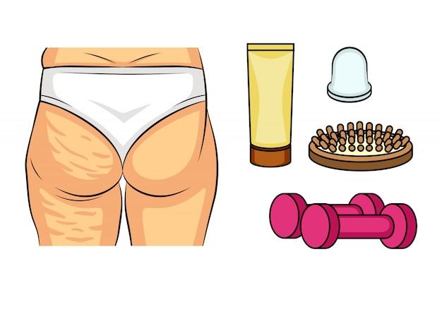 Farbvektorillustration vor und nach celluliteproblemen. rückansicht der weiblichen hüften. fettablagerungen am weiblichen gesäß. wege zur bekämpfung von cellulite. infografiken symbole peeling, massage, fitness.