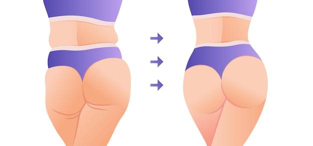 Fett zu fit körpertransformation frau vor und nach der diät gewichtsverlust
