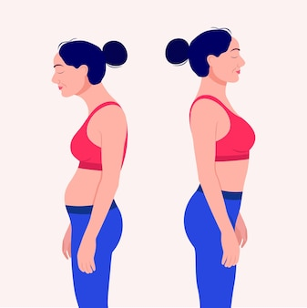 Frau mit haltungsfehler skoliose und idealer haltung