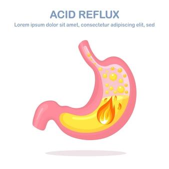 Gastroösophageale refluxkrankheit illustration