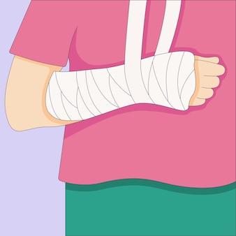 Gebrochener arm in einem gipsverband orthopädischer gipsverletzungsknochen, der in einem flachen stil gezeichnet ist