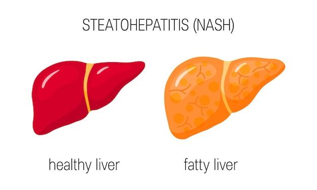 Gesunde und fettige leber im flachen stil.