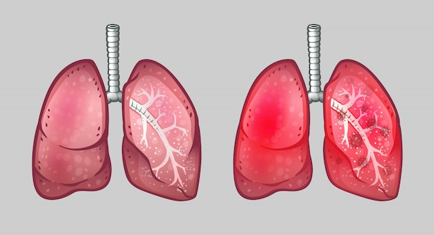 Gesunde und virusinfizierte menschliche lunge