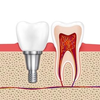 Gesunde zähne und zahnimplantate. implantatzahn, gesundheitszahnmedizinische zahnheilkunde, vektorillustration