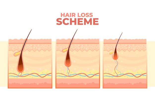 Gradient haarausfall schema