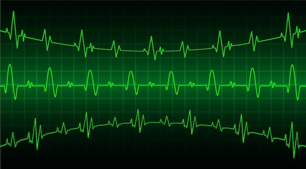 Grüner herzpulsmonitor mit signal. herzschlagwelle