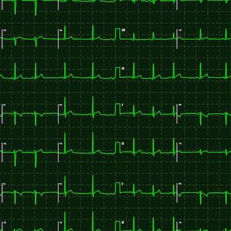 Grünes diagramm des typischen menschlichen elektrokardiogramms auf dunklem hintergrund, nahtloses muster