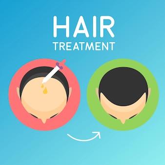 Haarbehandlung illustration