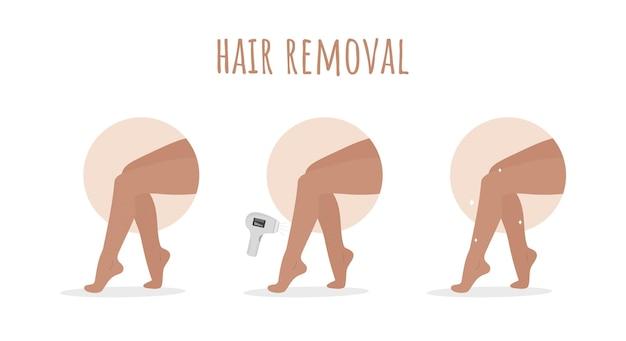 Haarentfernung. laserepilation.