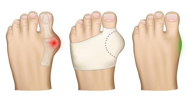 Hallux valgus problembehandlung mit einer bandage des hervorstehenden knochens am bein