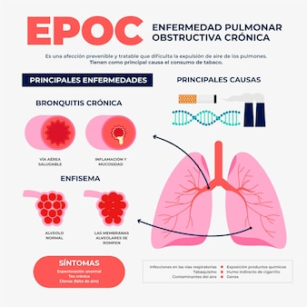 Hand gezeichnete epoc-infografik
