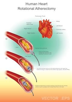 Herz-diamant-angioplastie