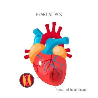 Herzinfarktkonzept im flachen stil.