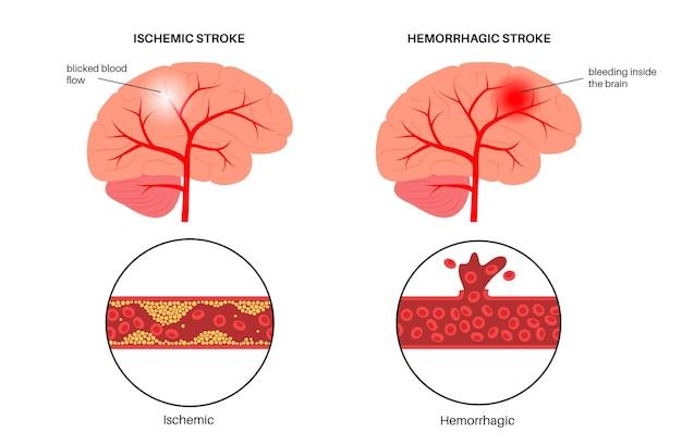 Hirnschlag ischämisch und hämorrhagisch