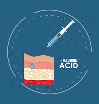 Hyaluronsäure füllstoff injektion infographik