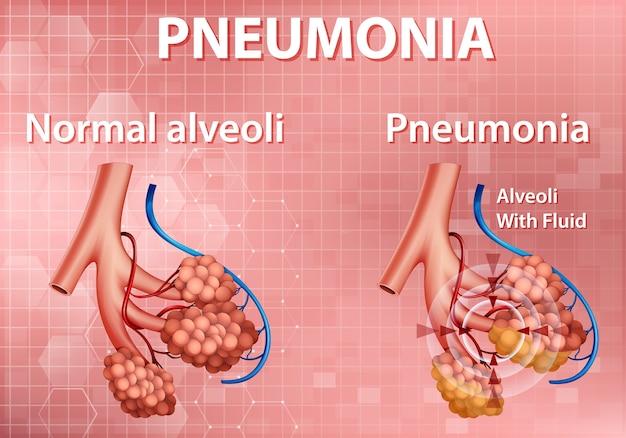 Illustration der menschlichen anatomie, die lungenentzündung zeigt