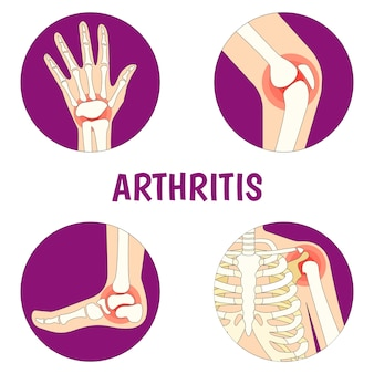 Illustration über arthritis