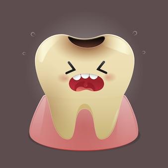 Illustration von zahnkaries