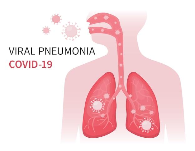 Infizierte menschliche lunge mit viraler lungenentzündung und covid