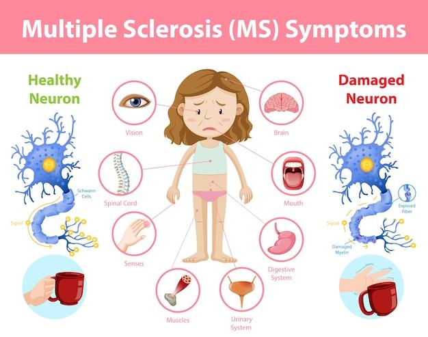 Infografik informationen zu symptomen der multiplen sklerose (ms)
