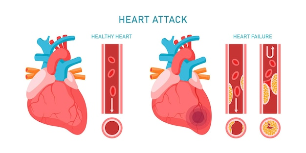 Infografik zu herzinfarkt und herz-kreislauf-erkrankungen. gesunde und versagende herzen, arteriosklerose-symptome und diagnose. flache vektorillustration. design für medizin, behandlung, gesundheitskonzept