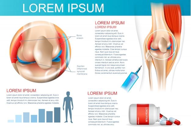 Infographik behandlungsmethode rheumatoide arthritis
