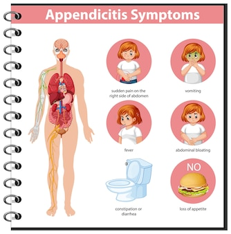 Informationen zur blinddarmentzündung symptome infografik