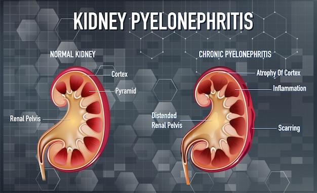 Informative darstellung der pyelonephritis
