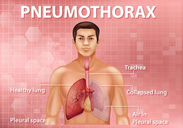 Informative darstellung des pneumothorax