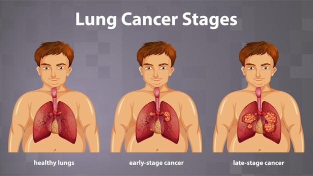 Informative darstellung von lungenkrebsstadien