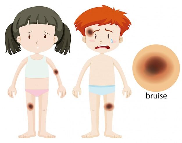 Jungen und mädchen mit bluterguss