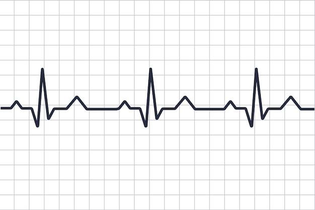 Kardiogramm bei herzkrankheiten. herzschlag-linie. kardiogramm. elektrokardiogramm. herzpulsmesser mit signal