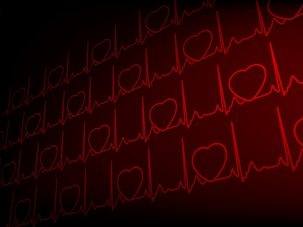 Kardiogramm ekg.