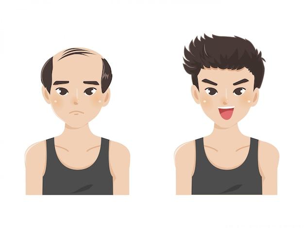 Karikaturvektorillustration eines kahlen mannes mit dem neuen haar.
