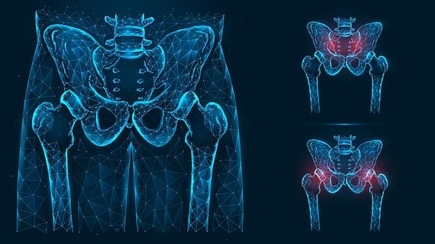 Knochen des beckens und der hüfte, menschliche anatomie. schmerzen im becken- und hüftgelenk.