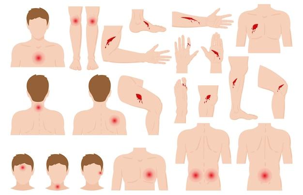 Körperverletzung der karikatur verletzt menschliche körperteile. körperschmerzen, kratzer, wunden und knochenbrüche vektorillustrationssatz. physische traumata des menschlichen körpers